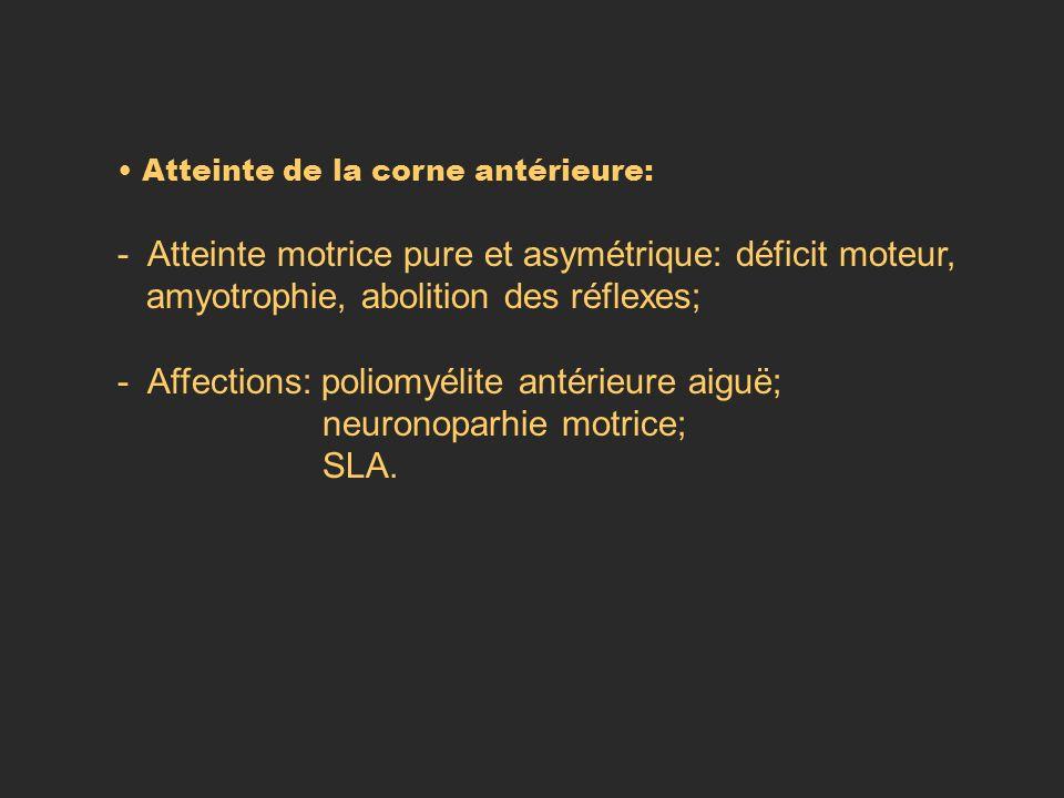 - Atteinte motrice pure et asymétrique: déficit moteur,