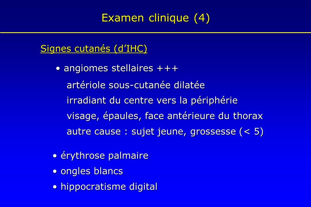 Examen clinique (4) Signes cutanés (d'IHC) • angiomes stellaires +++