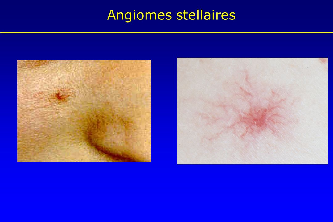 Angiomes stellaires