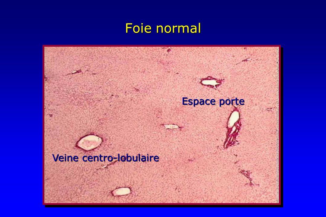 Foie normal Espace porte Veine centro-lobulaire