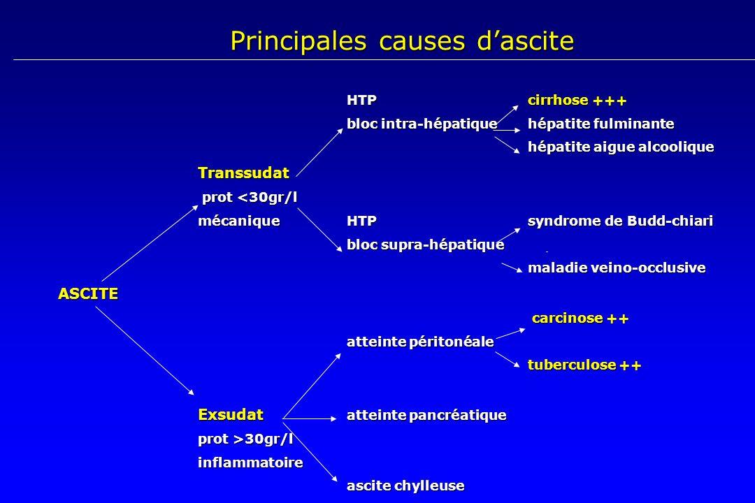 Principales causes d'ascite