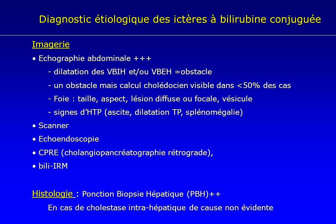 Diagnostic étiologique des ictères à bilirubine conjuguée