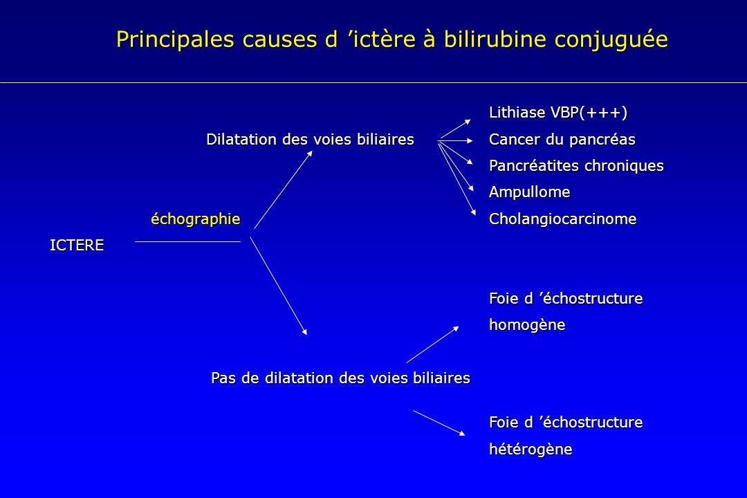 Principales causes d 'ictère à bilirubine conjuguée