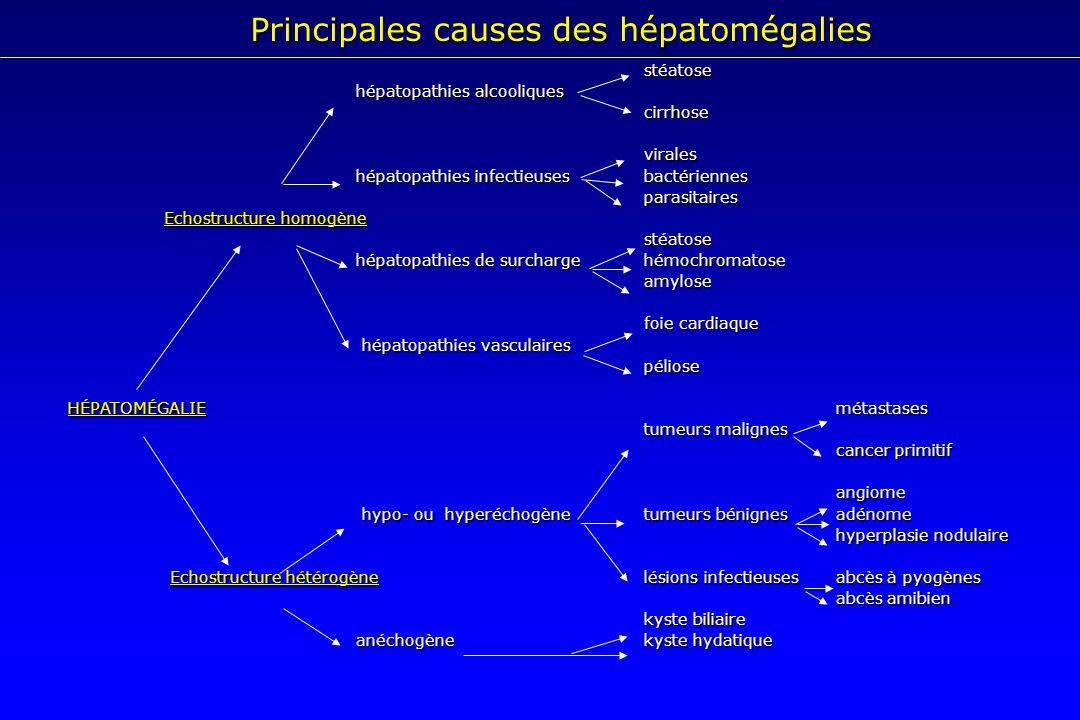 Principales causes des hépatomégalies