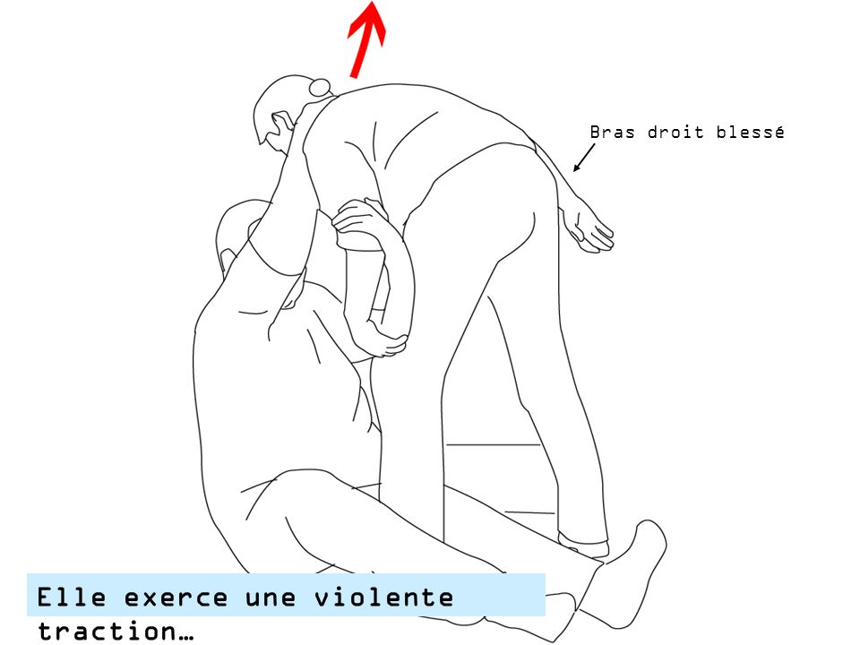 Elle exerce une violente traction…