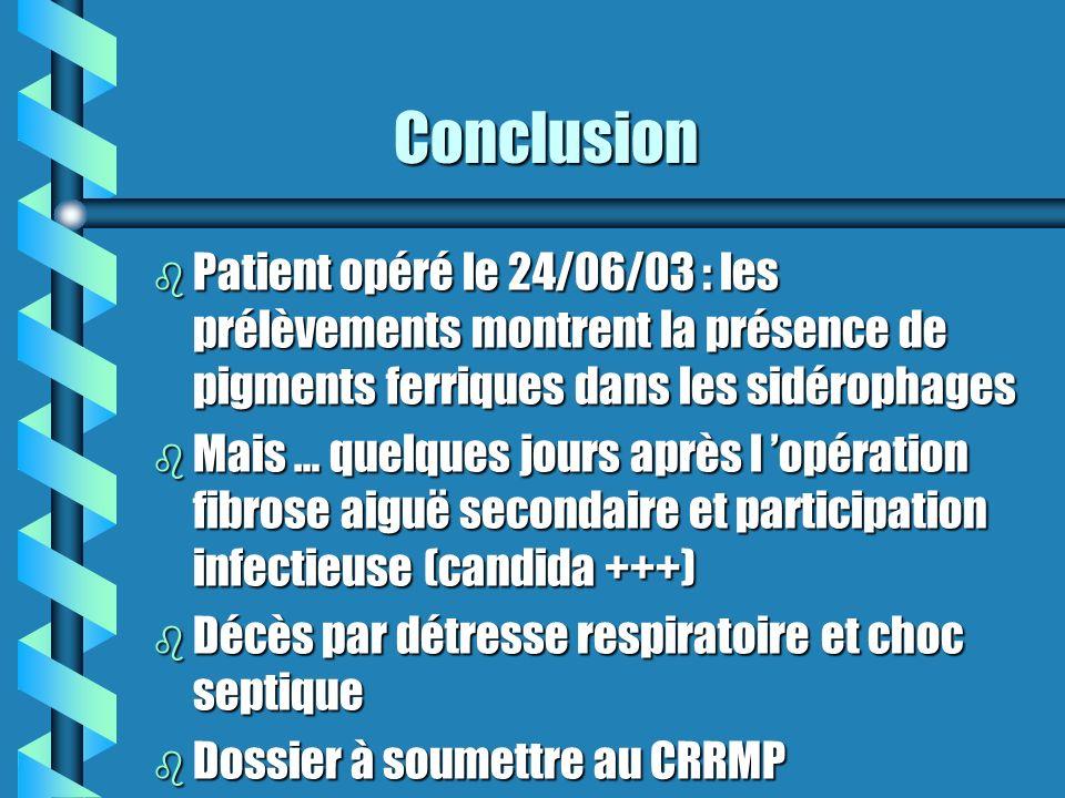 Conclusion Patient opéré le 24/06/03 : les prélèvements montrent la présence de pigments ferriques dans les sidérophages.
