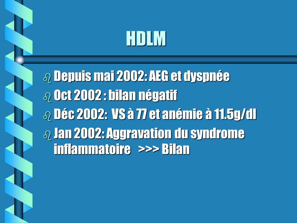 HDLM Depuis mai 2002: AEG et dyspnée Oct 2002 : bilan négatif