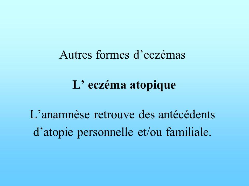 Autres formes d'eczémas L' eczéma atopique L'anamnèse retrouve des antécédents d'atopie personnelle et/ou familiale.