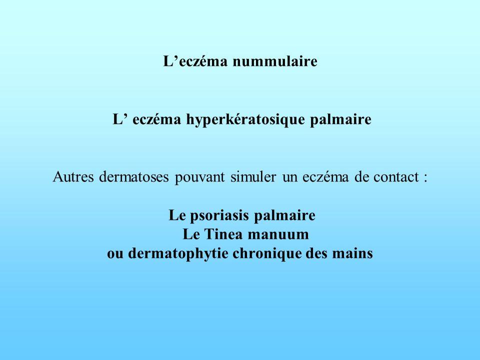 L'eczéma nummulaire L' eczéma hyperkératosique palmaire Autres dermatoses pouvant simuler un eczéma de contact : Le psoriasis palmaire Le Tinea manuum ou dermatophytie chronique des mains