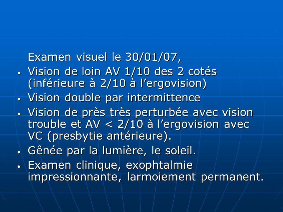 Examen visuel le 30/01/07, Vision de loin AV 1/10 des 2 cotés (inférieure à 2/10 à l'ergovision) Vision double par intermittence.