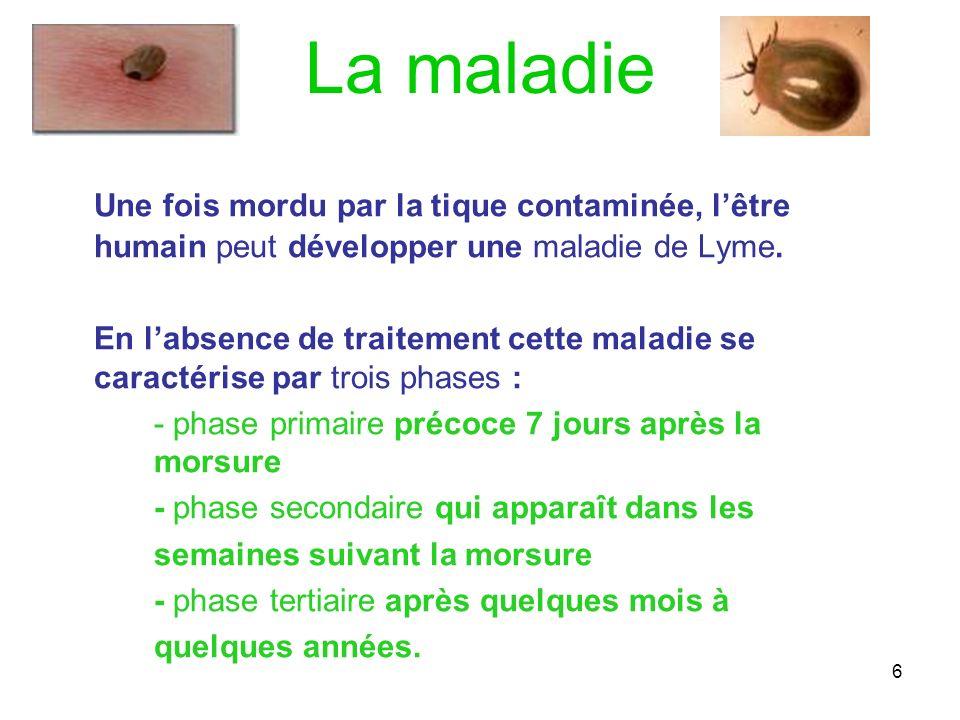 La maladieUne fois mordu par la tique contaminée, l'être humain peut développer une maladie de Lyme.