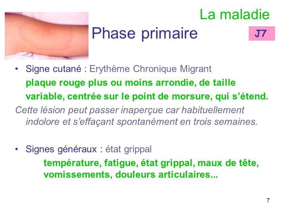 Phase primaire La maladie J7 Signe cutané : Erythème Chronique Migrant