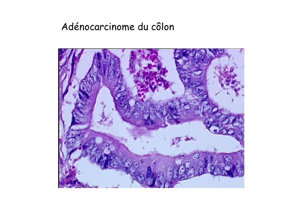 Adénocarcinome du côlon