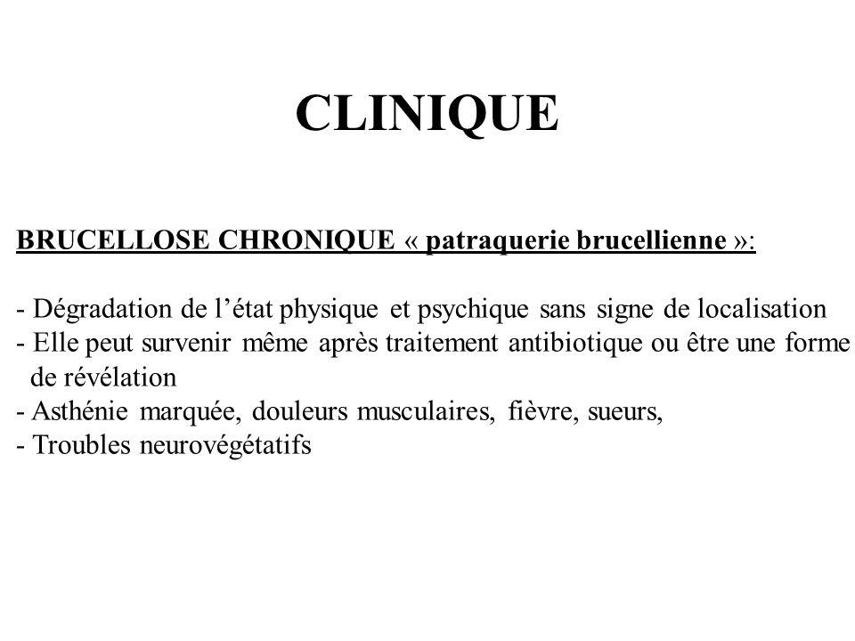 CLINIQUE BRUCELLOSE CHRONIQUE « patraquerie brucellienne »: