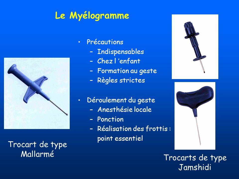 Le Myélogramme Trocart de type Mallarmé Trocarts de type Jamshidi
