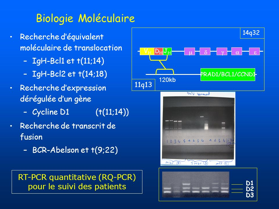 RT-PCR quantitative (RQ-PCR) pour le suivi des patients