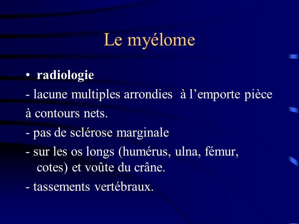 Le myélome radiologie - lacune multiples arrondies à l'emporte pièce