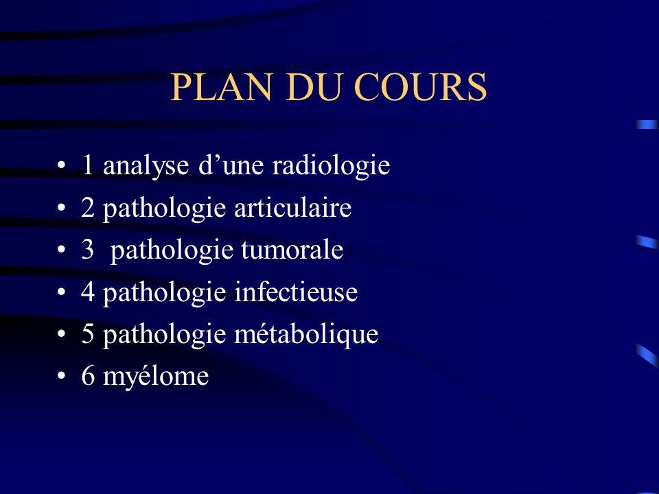 PLAN DU COURS 1 analyse d'une radiologie 2 pathologie articulaire
