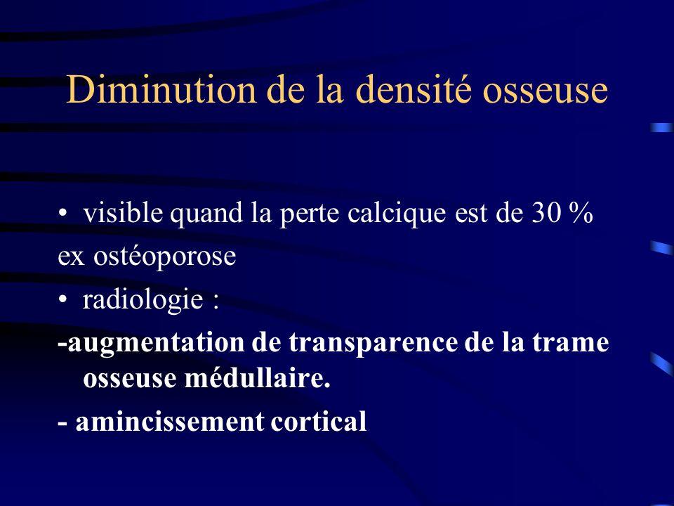 Diminution de la densité osseuse