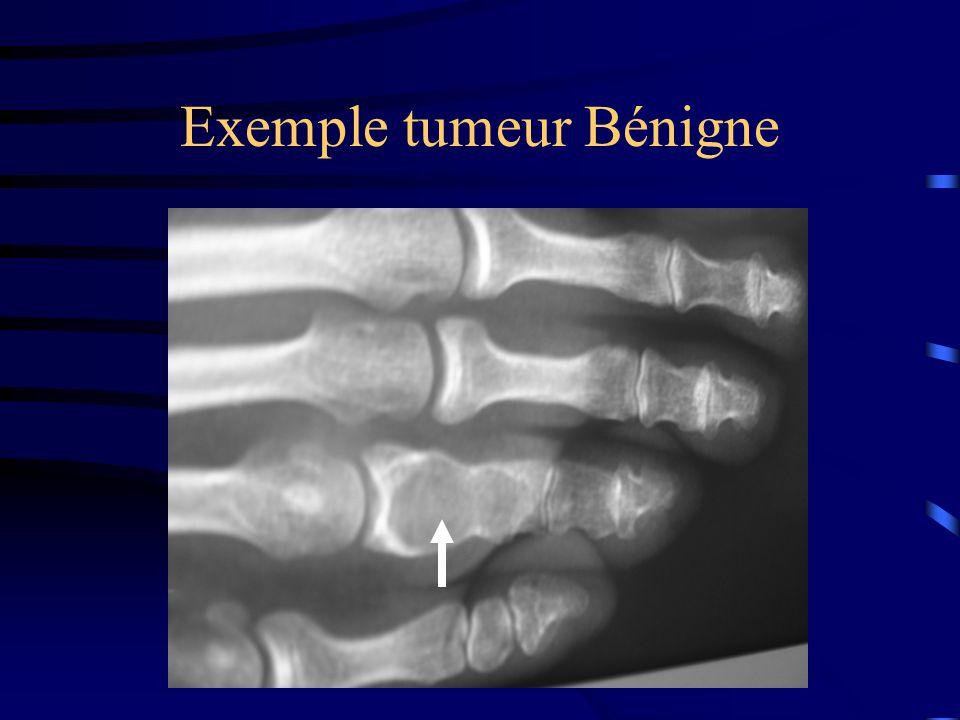 Exemple tumeur Bénigne