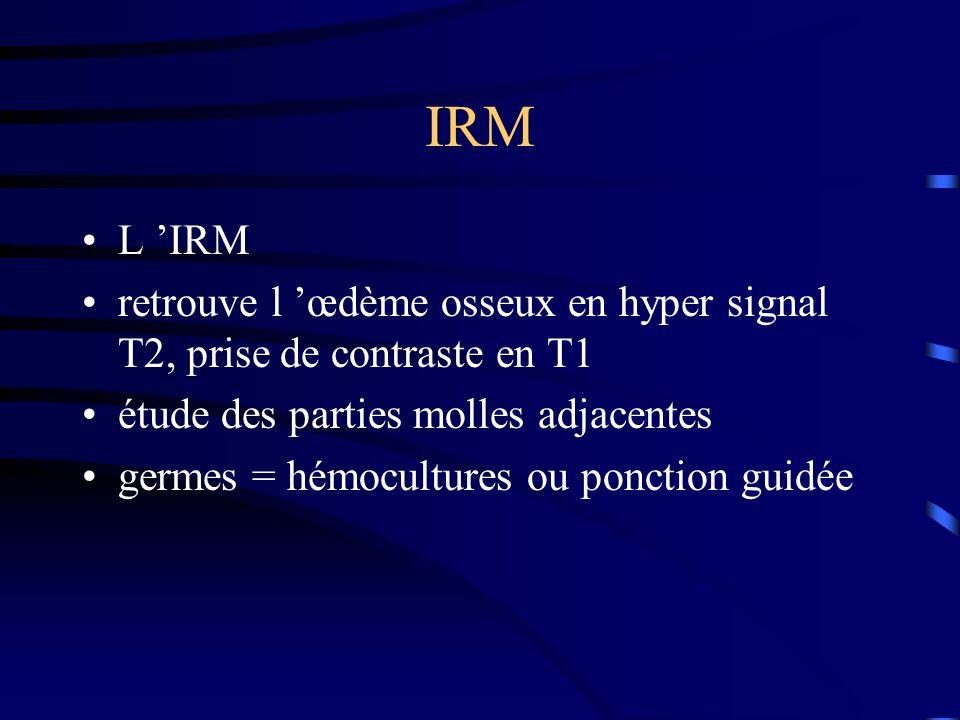 IRM L 'IRM. retrouve l 'œdème osseux en hyper signal T2, prise de contraste en T1. étude des parties molles adjacentes.