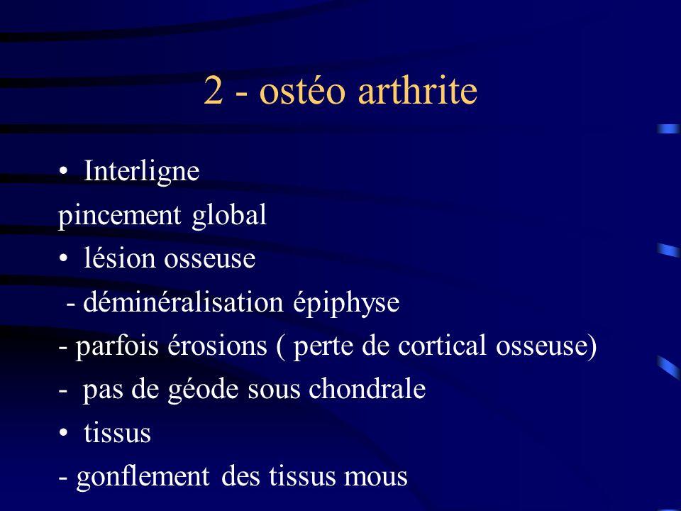 2 - ostéo arthrite Interligne pincement global lésion osseuse