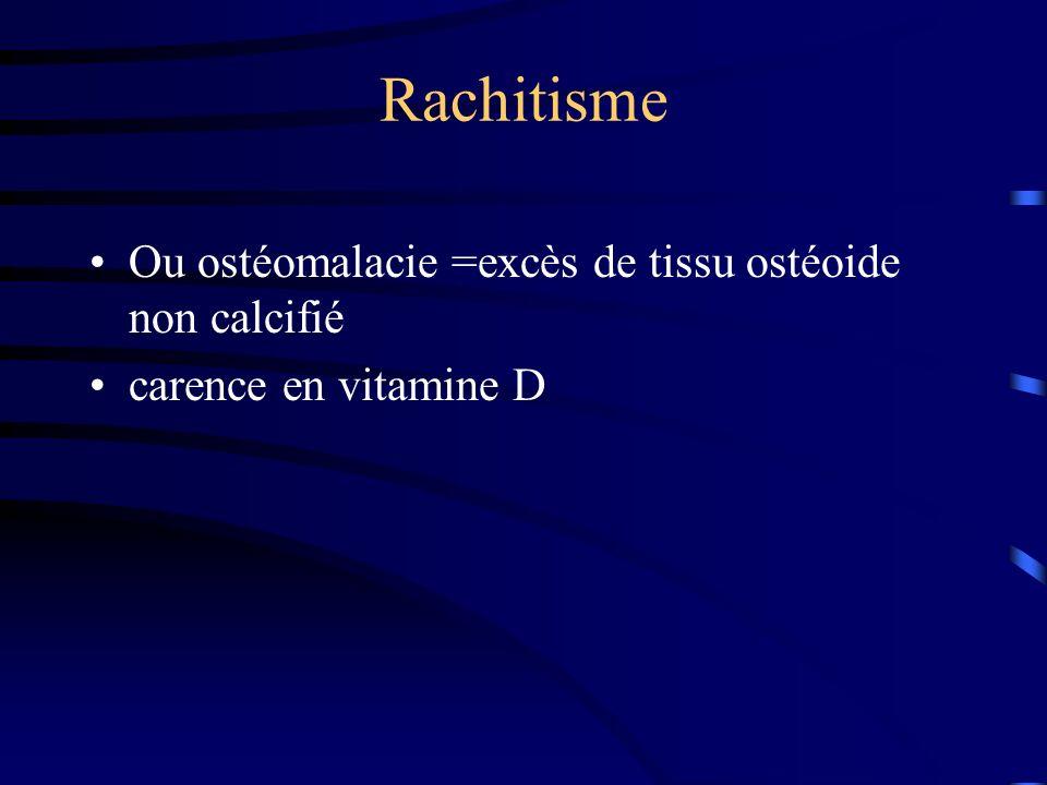 Rachitisme Ou ostéomalacie =excès de tissu ostéoide non calcifié