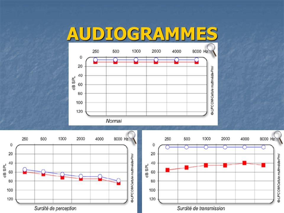 AUDIOGRAMMES