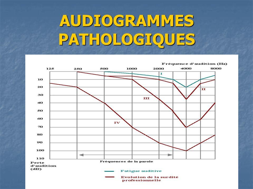 AUDIOGRAMMES PATHOLOGIQUES