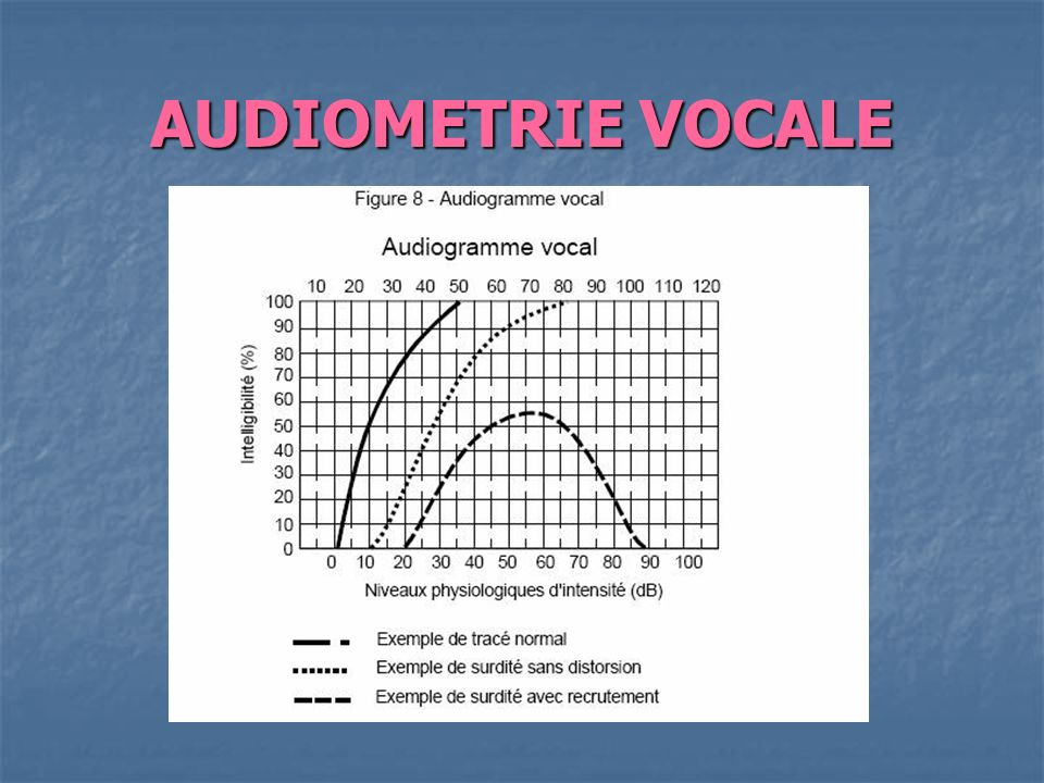 AUDIOMETRIE VOCALE