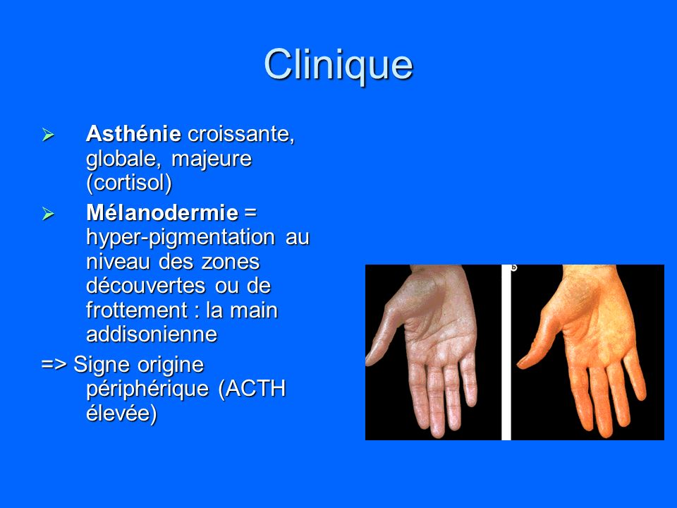 Clinique Asthénie croissante, globale, majeure (cortisol)