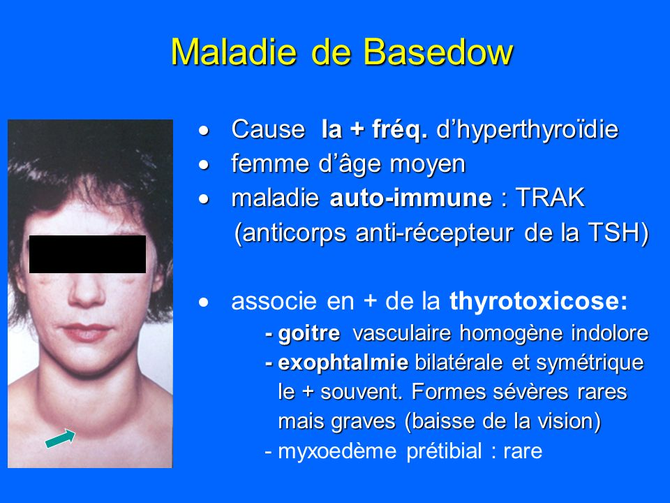 Maladie de Basedow Cause la + fréq. d'hyperthyroïdie femme d'âge moyen