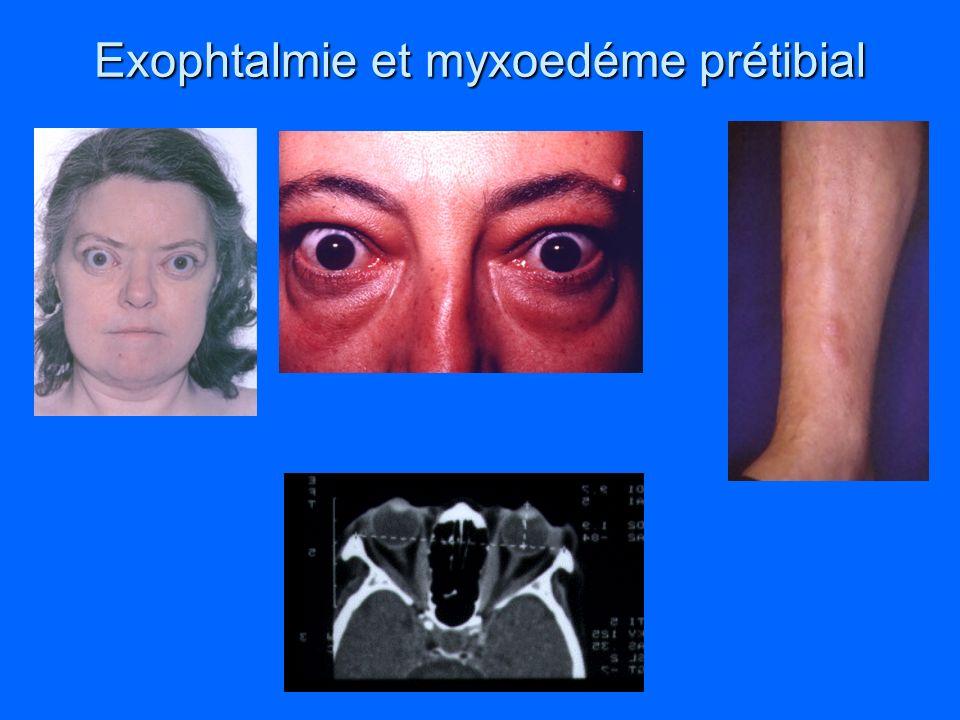 Exophtalmie et myxoedéme prétibial