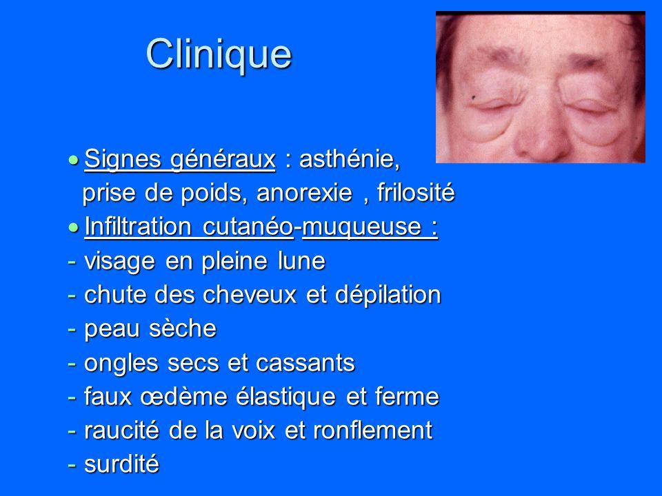 Clinique Signes généraux : asthénie,