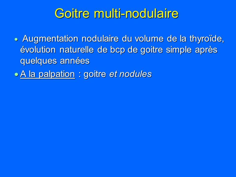 Goitre multi-nodulaire