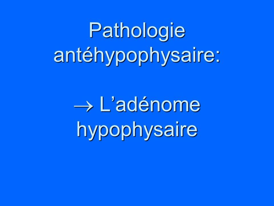 Pathologie antéhypophysaire:  L'adénome hypophysaire