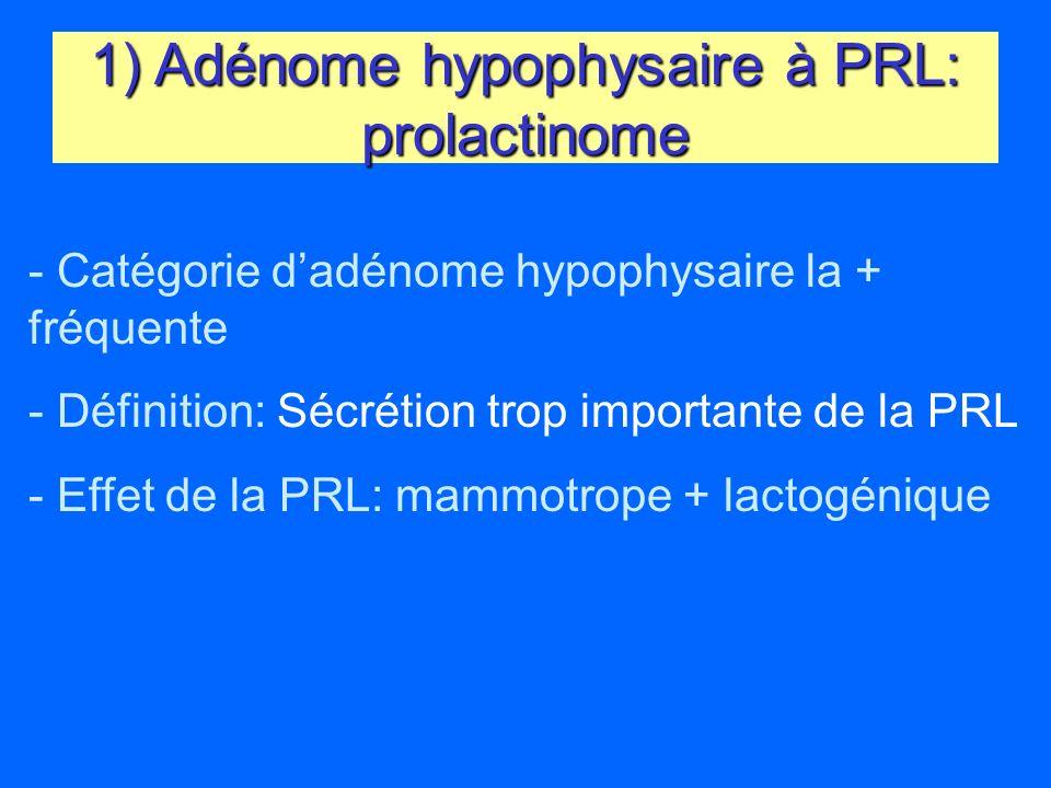 1) Adénome hypophysaire à PRL: prolactinome