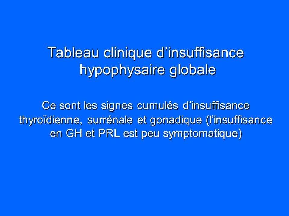 Tableau clinique d'insuffisance hypophysaire globale Ce sont les signes cumulés d'insuffisance thyroïdienne, surrénale et gonadique (l'insuffisance en GH et PRL est peu symptomatique)