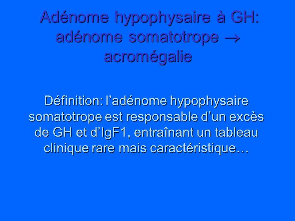 Adénome hypophysaire à GH: adénome somatotrope  acromégalie