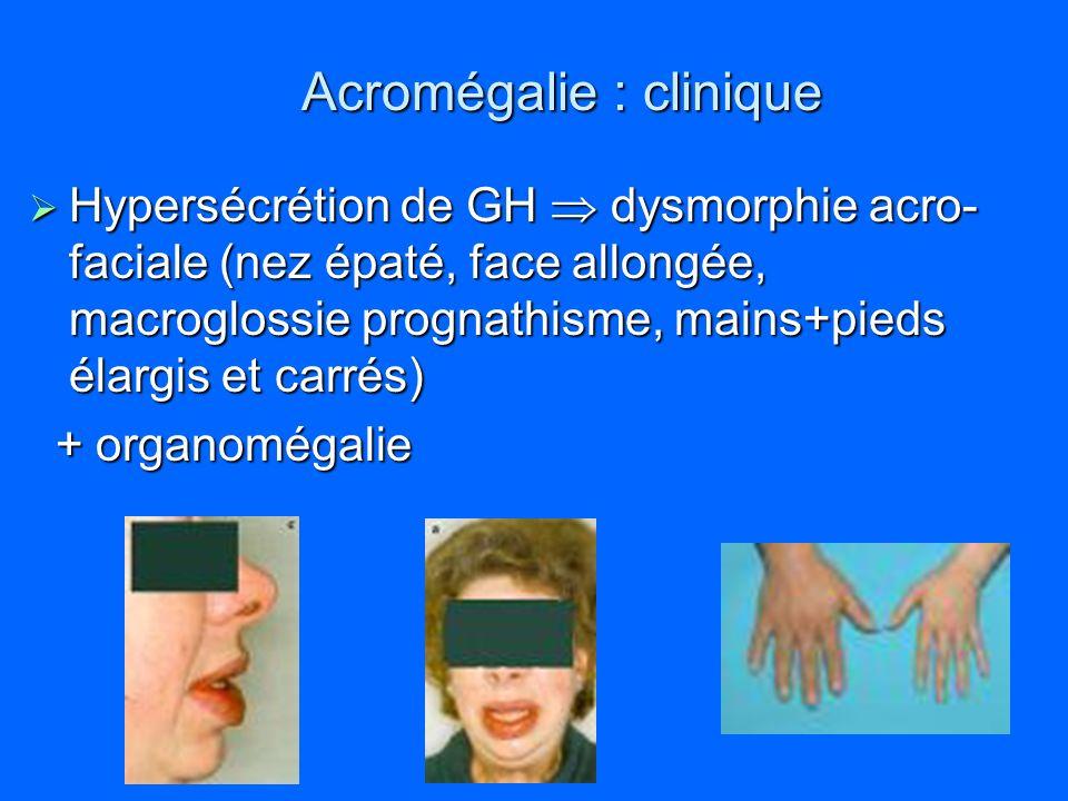 Acromégalie : clinique