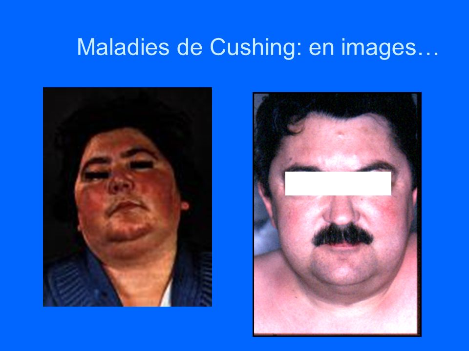 Maladies de Cushing: en images…