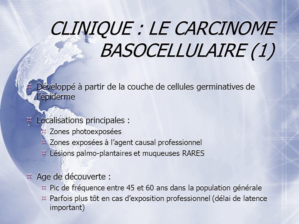 CLINIQUE : LE CARCINOME BASOCELLULAIRE (1)