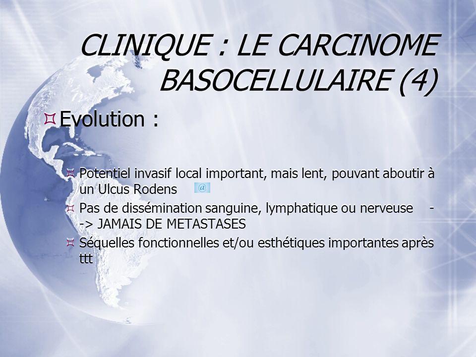 CLINIQUE : LE CARCINOME BASOCELLULAIRE (4)