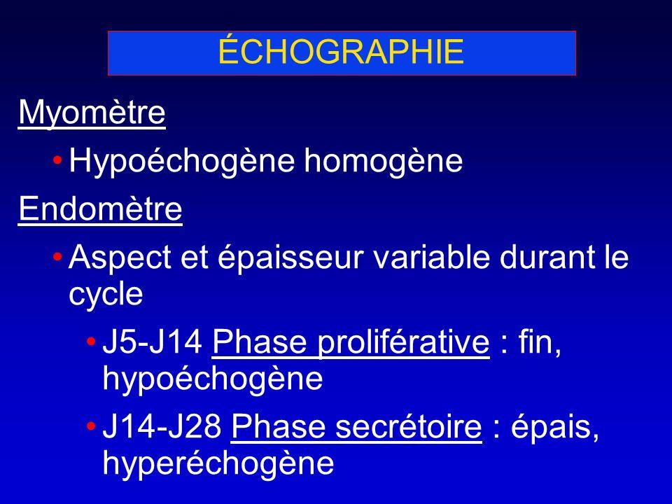ÉCHOGRAPHIE Myomètre. Hypoéchogène homogène. Endomètre. Aspect et épaisseur variable durant le cycle.
