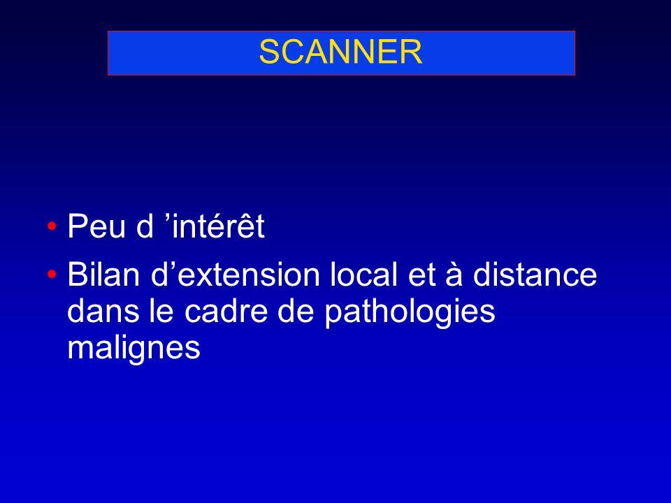 SCANNER Peu d 'intérêt Bilan d'extension local et à distance dans le cadre de pathologies malignes