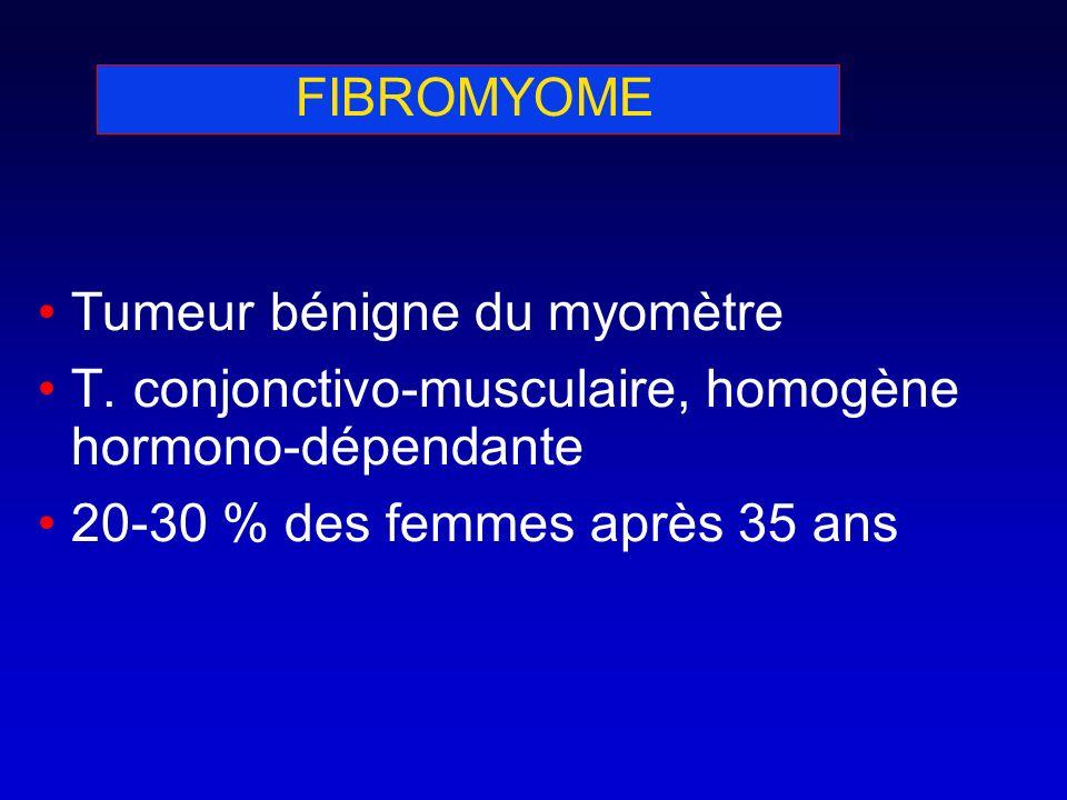 FIBROMYOME Tumeur bénigne du myomètre. T. conjonctivo-musculaire, homogène hormono-dépendante.