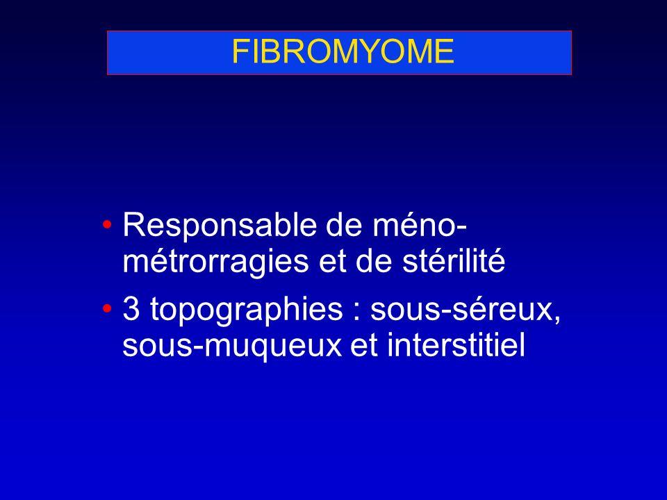 FIBROMYOME Responsable de méno-métrorragies et de stérilité.