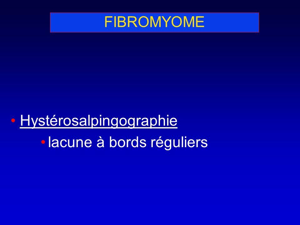 FIBROMYOME Hystérosalpingographie lacune à bords réguliers
