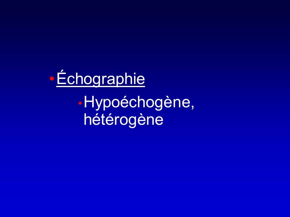 Échographie Hypoéchogène, hétérogène