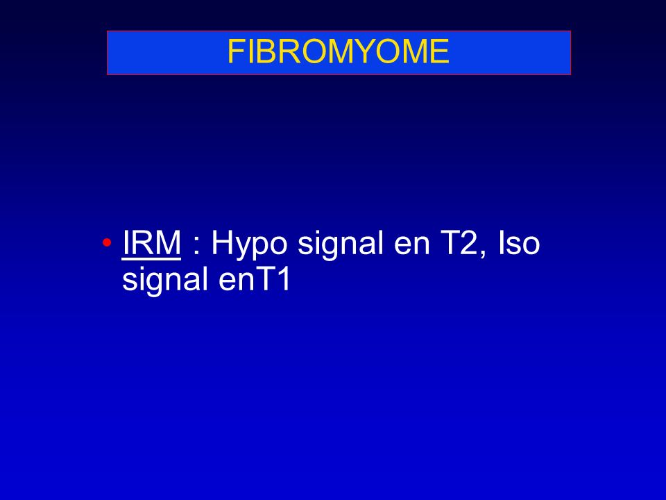 FIBROMYOME IRM : Hypo signal en T2, Iso signal enT1